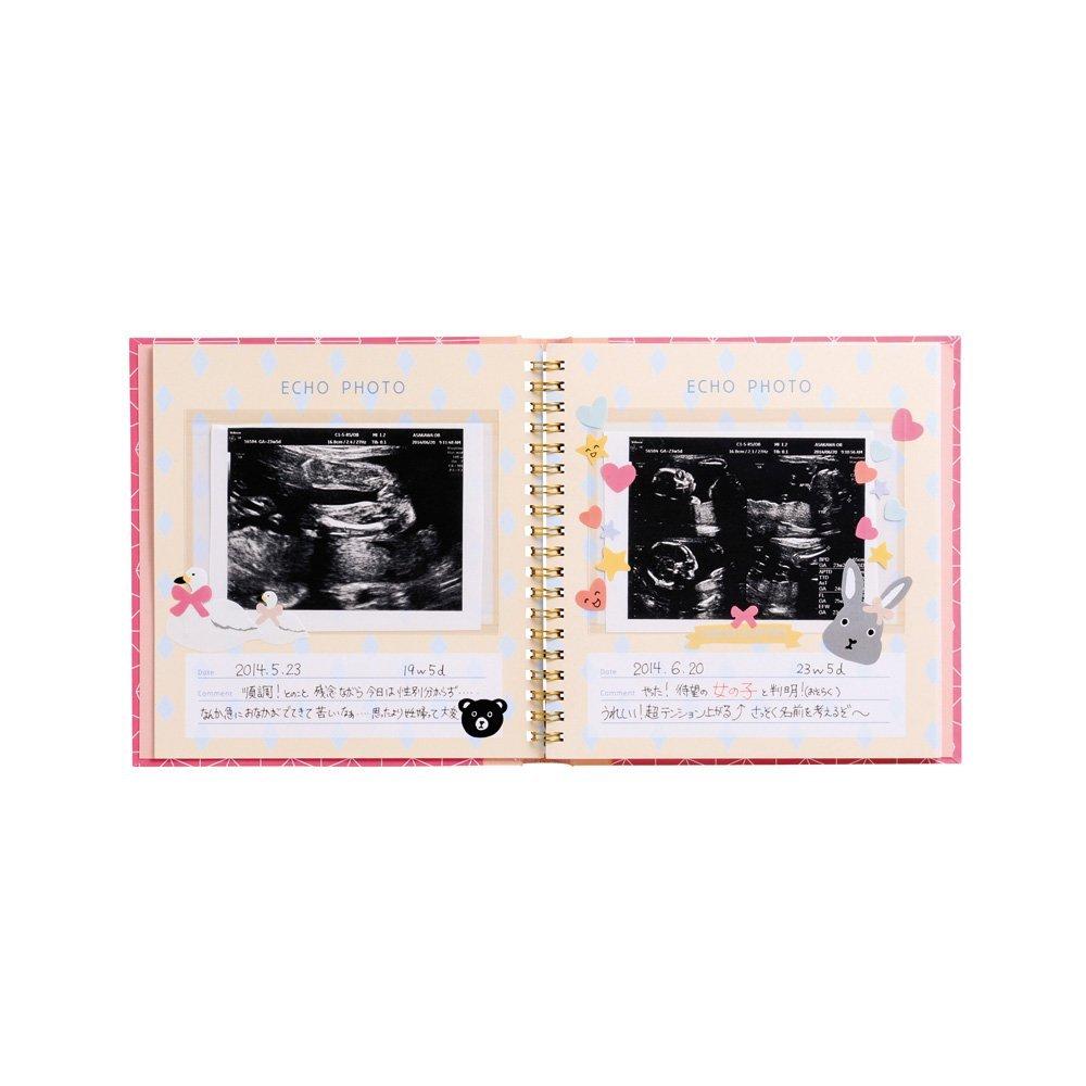 エコー写真アルバムのおすすめ5選&選び方【大切に保存】